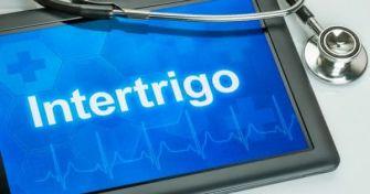 Intertrigo: Alles über das nässende Ekzem | apomio Gesundheitsblog