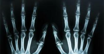 Röntgen: So funktioniert der Blick ins Innere