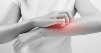 Juckreiz, Schuppen und Rötung: So äußert sich ein Hautpilz
