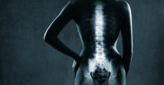 Osteoporose:  Wenn die Knochen schwinden
