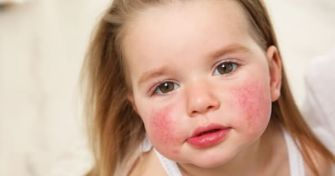 Ohrfeigenkrankheit - Ringelröteln bei Kindern   apomio Gesundheitsblog