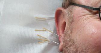 Ohrakupunktur - Anwendung und Wirkung   apomio Gesundheitsblog