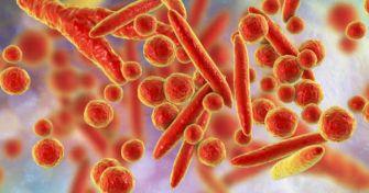 Erkrankung durch Bakterien - Mycoplasma Genitalium, die noch unbekannte Geschlechtskrankheit | apomio Gesundheitsblog