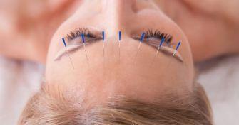 Heilender Piks: Gesund durch Akupunktur