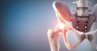 Hüftdysplasie: Hüftfehlstellung mit Folgen