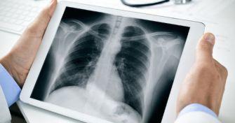 Lungenfibrose: Wenn das Atmen schwer fällt