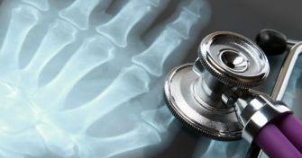 Rheumatoide Arthritis : Ursache, Verlauf und Therapie | apomio Gesundheitsblog