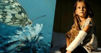 Die Schmetterlingskrankheit: Ein leichter Name für ein schweres Schicksal   apomio Gesundheitsblog