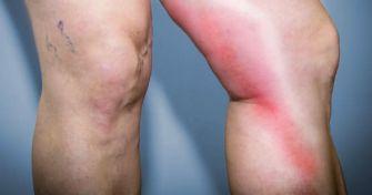 Venenentzündung: Wie entsteht eine Thrombophlebitis ? | apomio Gesundheitsblog